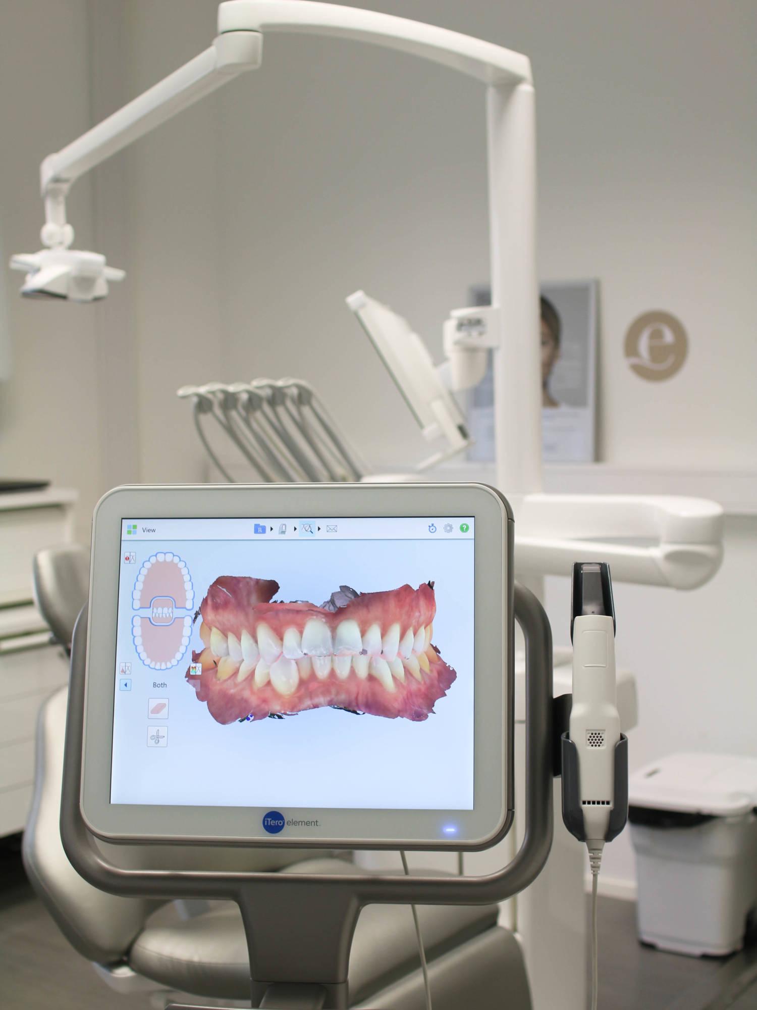 Tavoitteena täydellinen hammasrivi